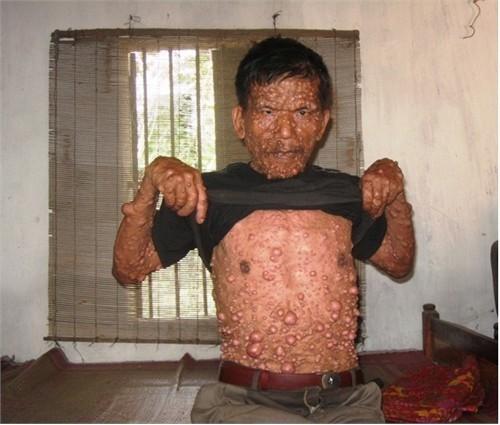 Hàng nghìn khối u nhọt sống ký sinh trên cơ thể