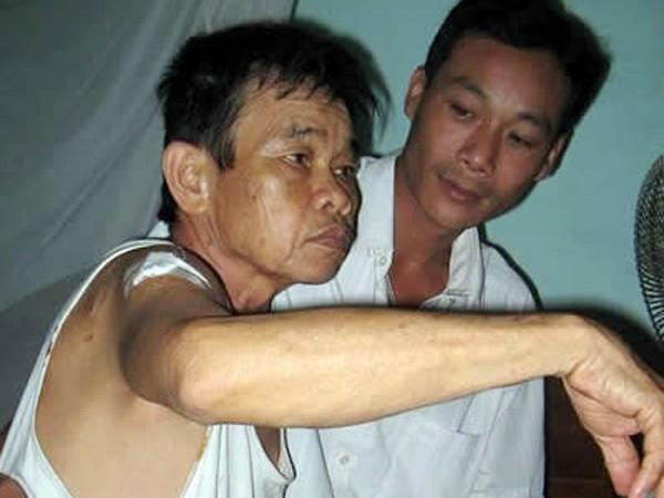 Ông Thái Bá Mại (72 tuổi) - nạn nhân của một con nghiện thuốc lắc