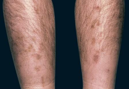 Thay đổi bất thường trên da, coi chừng bệnh nguy hiểm - ảnh 3