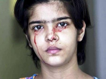 Twinkle Dwivedi với khuôn mặt dính đầy máu do bài tiết