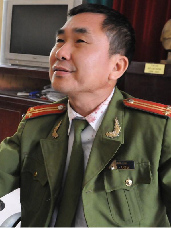 Trung tá Trần Bảo Lâm cho rằng không vụt trúng mặt mà do anh Bắc bỏ chạy đâm vào tường và tấm biển hiệu nên mới bị thương.             Ảnh: Tuấn Nguyễn.