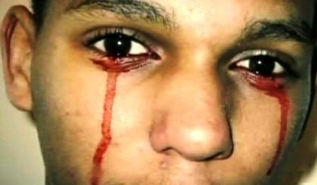 Cậu bé Calvino Inman với đôi hàng nước mắt là máu