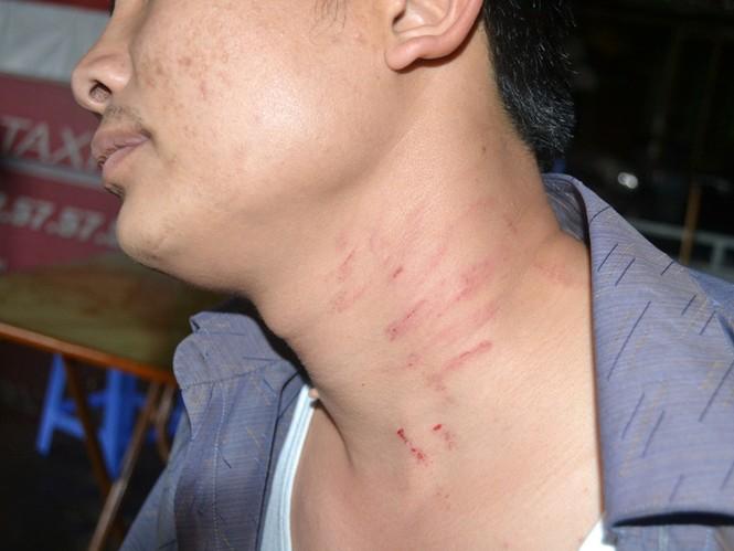 Vết thương trên cổ anh Trọng do bị nhà xe hành hung. Ảnh: Tuấn Nguyễn