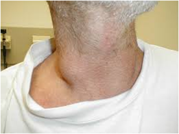 15 dấu hiệu ung thư đàn ông dễ bỏ qua