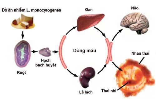 L-monocytogenes-6008-1421833172.jpg