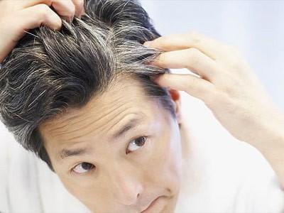 Nhìn vị trí tóc bạc sớm đoán nhiều bệnh nan y - ảnh 8