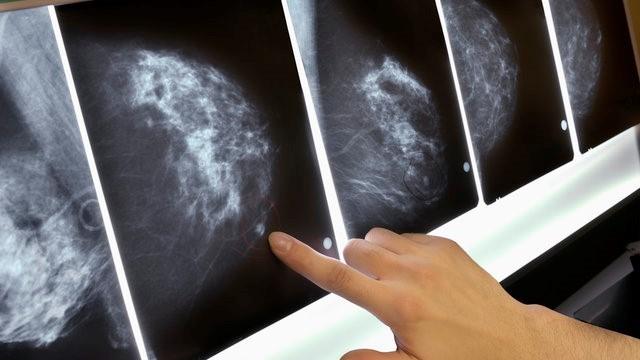Ung thư vú được nhận biết sớm có tỷ lệ khỏi rất cao. Ảnh: Gettyimages.