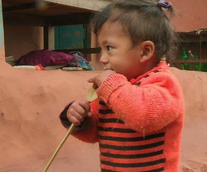 Bé trai Nepal 'mọc' thêm tay ở... lưng - ảnh 1