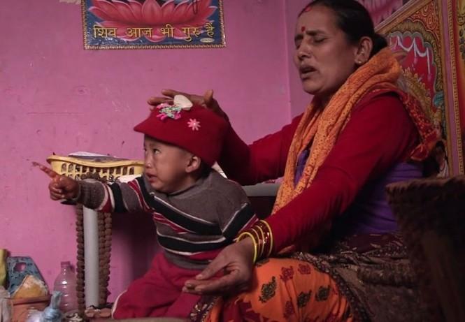 Bé trai Nepal 'mọc' thêm tay ở... lưng - ảnh 6