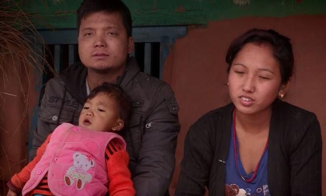 Bé trai Nepal 'mọc' thêm tay ở... lưng - ảnh 3