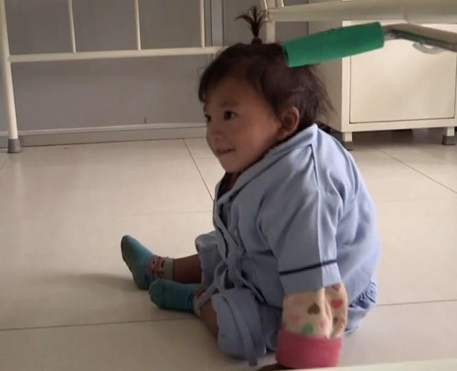 Bé trai Nepal 'mọc' thêm tay ở... lưng - ảnh 8
