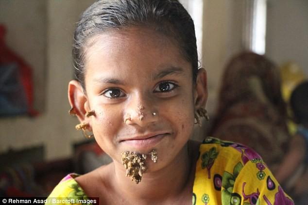 Kỳ lạ cô bé 'người cây' ở Bangladesh - ảnh 2