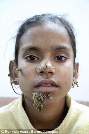 Kỳ lạ cô bé 'người cây' ở Bangladesh - ảnh 3