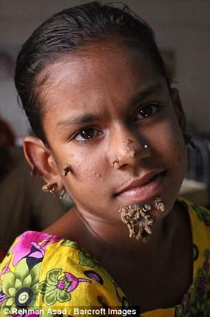 Kỳ lạ cô bé 'người cây' ở Bangladesh - ảnh 4