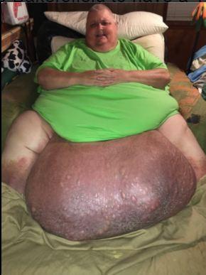 Tưởng béo bụng hóa ra khối u nặng 60kg - ảnh 2