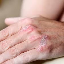 Giảm triệu chứng của bệnh vẩy nến - ảnh 1