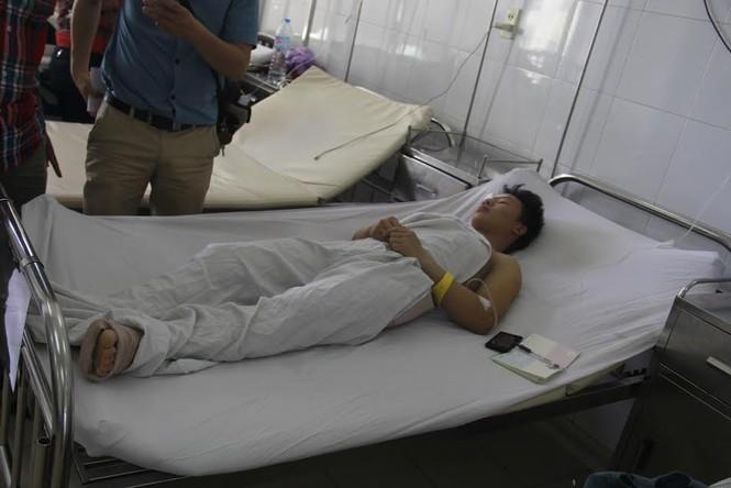 Nguyên nhân vụ sập sàn bê tông vùi lấp nhiều người ở Đà Nẵng - ảnh 2