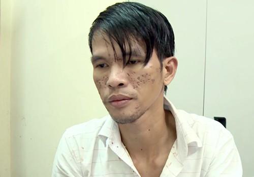 Bộ Công an muốn Campuchia giám định thương tật bé trai bị bạo hành - ảnh 1