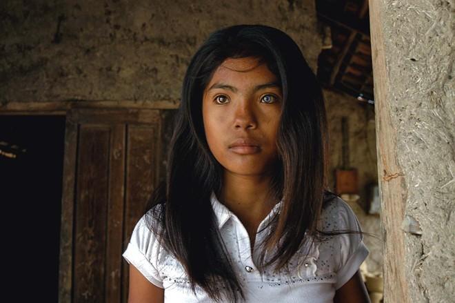 Cô gái có đôi mắt hai màu kỳ lạ ở Ninh Thuận - ảnh 1