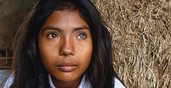 Cô gái có đôi mắt hai màu kỳ lạ ở Ninh Thuận - ảnh 2