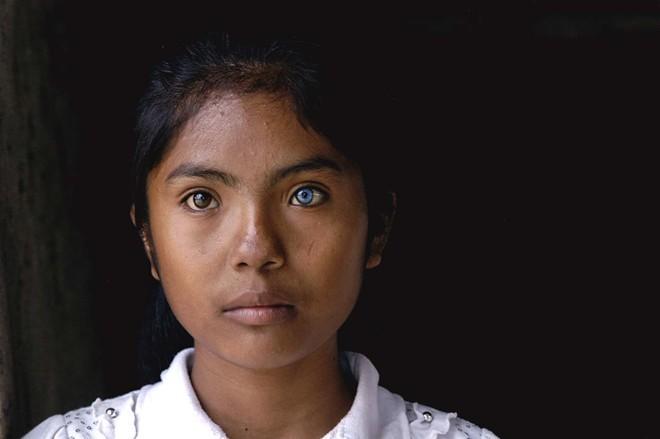Cô gái có đôi mắt hai màu kỳ lạ ở Ninh Thuận - ảnh 3