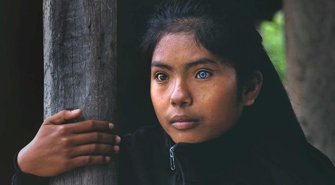 Cô gái có đôi mắt hai màu kỳ lạ ở Ninh Thuận - ảnh 4