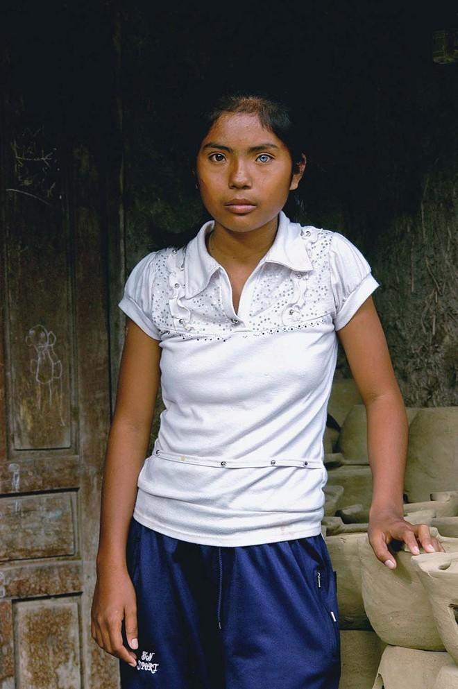 Cô gái có đôi mắt hai màu kỳ lạ ở Ninh Thuận - ảnh 5