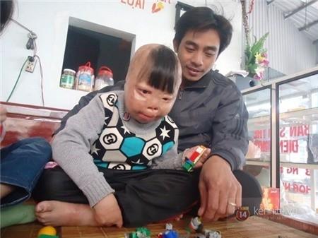 Hành trình 4 năm sống sót của cậu bé bị cha ruột đổ xăng đốt - ảnh 5