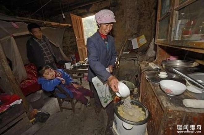 Kỳ lạ bé gái hai ngày ăn hết 5 kg gạo - ảnh 2