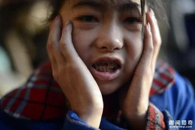 Kỳ lạ bé gái hai ngày ăn hết 5 kg gạo - ảnh 4