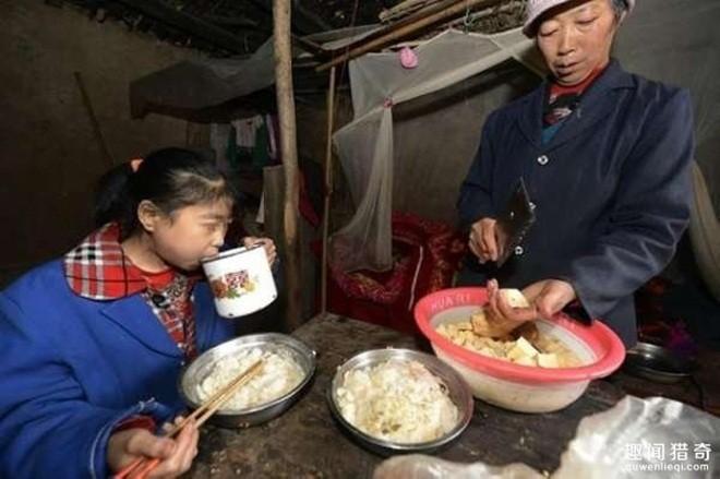 Kỳ lạ bé gái hai ngày ăn hết 5 kg gạo - ảnh 6