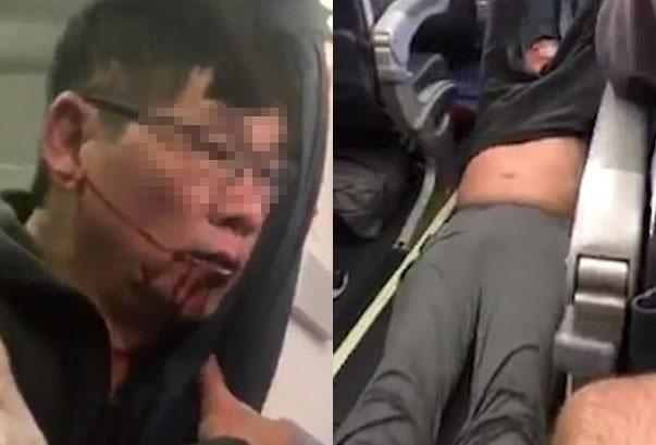 Vụ David Dao chưa dứt, United Airlines lại bị tố ép cụ bà 94 - ảnh 1